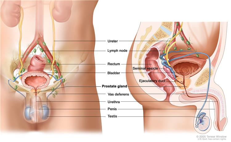 General Information About Prostate Cancer