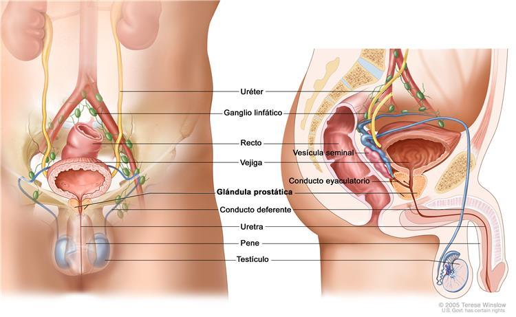 El cáncer de próstata es una enfermedad en la que se forman células ...