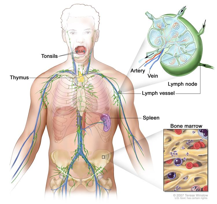 Adult Hodgkin lymphoma is a disease in which malignant (cancer)