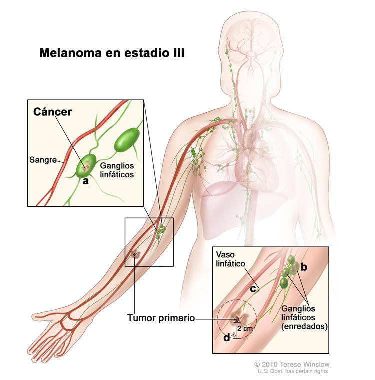 Estadios del melanoma