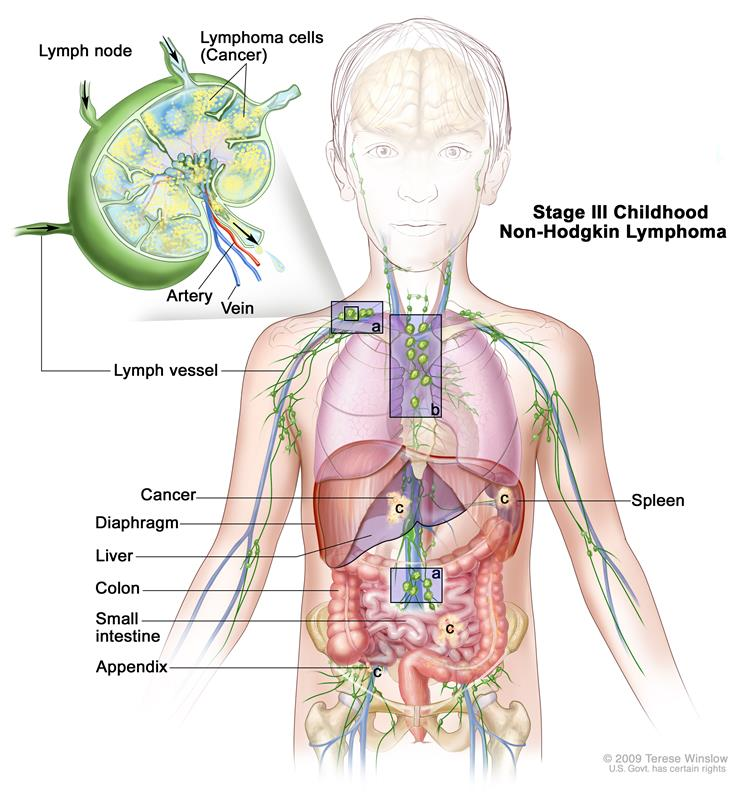 Stages Of Childhood Non Hodgkin Lymphoma
