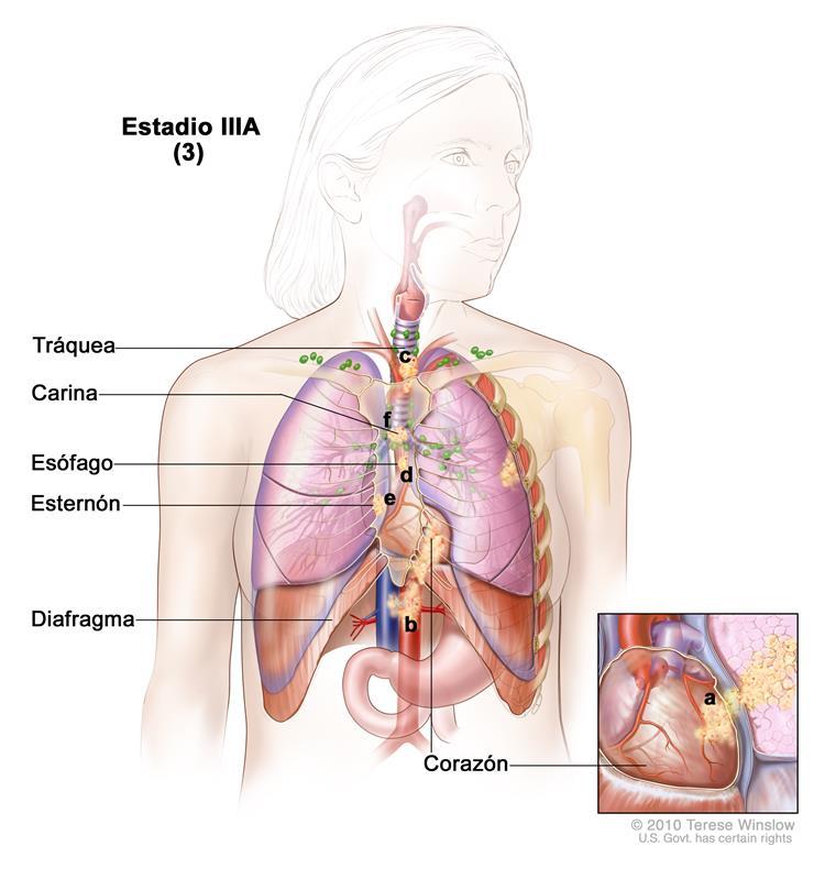 Estadios del cáncer de pulmón de células no pequeñas
