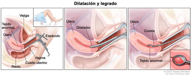(cancerosas) en los tejidos del endometrio.