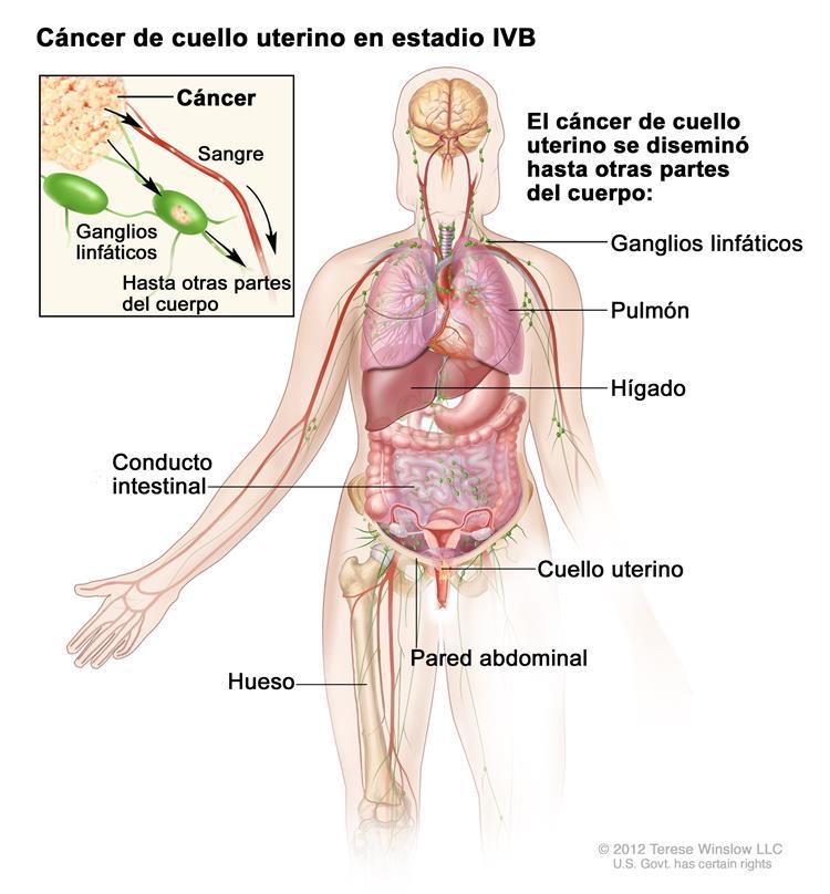 Estadios del cáncer de cuello uterino