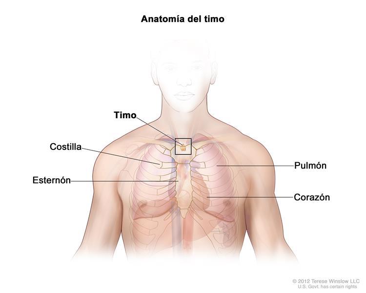 (cancerosas) en la superficie externa del timo.