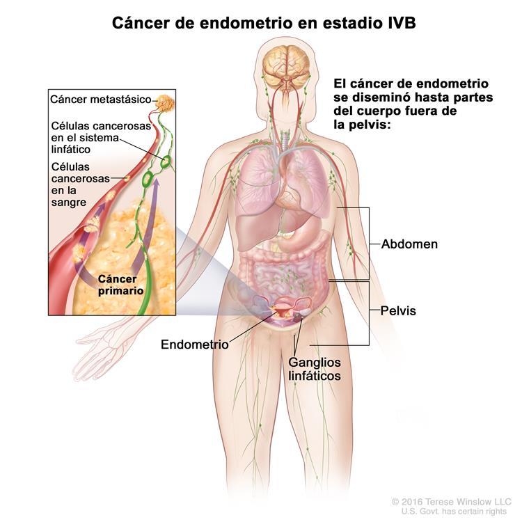 Estadios del cáncer de endometrio