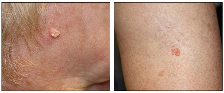 Photographs showing the side of a person's face with a skin cancer lesion that looks raised and crusty (left panel) and a person's leg with a skin cancer lesion that looks pink and raised (right panel).