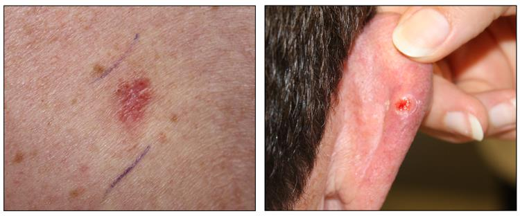 Photographs showing a skin cancer lesion that looks reddish brown and slightly raised (left panel) and the back of a person's ear with a skin cancer lesion that looks like an open sore with a pearly rim (right panel).