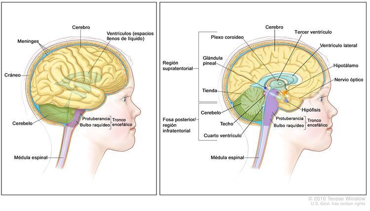 Información general sobre el glioma de tronco encefálico infantil