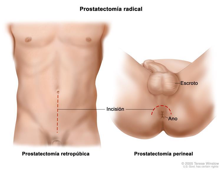 cirugía para extirpar una cavidad cancerosa de la glándula prostática